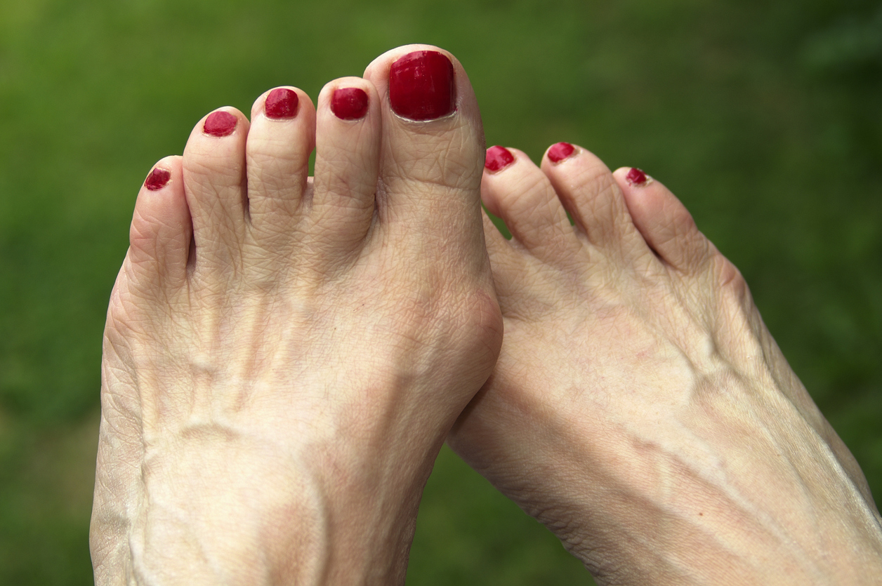 Prominent foot veins