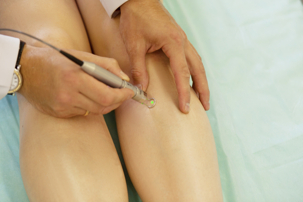 laser treatment varicose veins